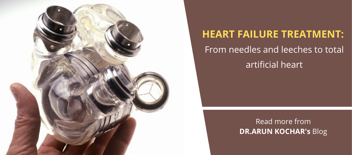 Heart failure treatment: From needles and leeches to total artificial heart